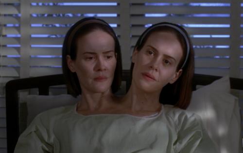Le gemelle siamesi Bet e Dott